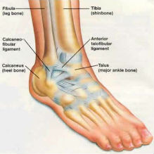 Chronic Ankle Laxity