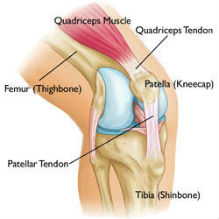 Patella-Femoral Syndrome